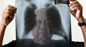 pulmon-asbestos2